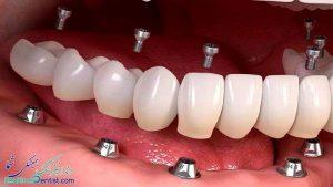 متخصص ایمپلنت و کاشت دندان اقساطی در شیراز |  کاشت ایمپلنت در شیراز