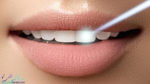 بلیچینگ با لیزر در شیراز – دندانپزشکان متخصص بلیچینگ وسفید کردن دندان