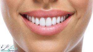 کامپوزیت ونیر در شیراز + آدرس و شماره تماس بهترین متخصص کامپوزیت دندان در شیراز