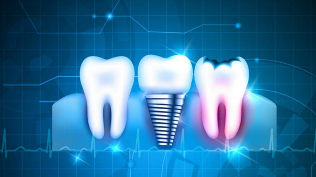 کلینیک دندانپزشکی دیجیتال در شیراز