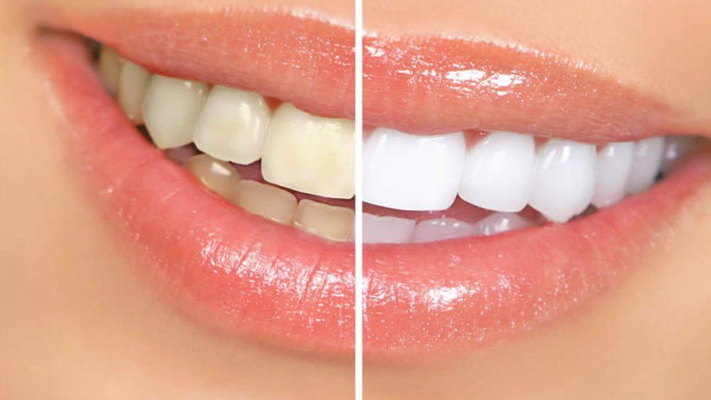 طراحی و اصلاح لبخند به روش دیجیتال