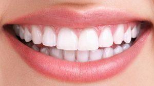 سفید کردن دندان یا بلیچینگ چیست؟