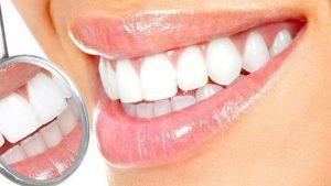 ونیر کامپوزیت دندان: مزایا و معایب، مراحل، هزینه و مراقبت های پس از انجام ونیر کامپوزیت دندان