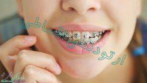 ارتودنسی اقساطی در شیراز + آدرس و شماره تماس