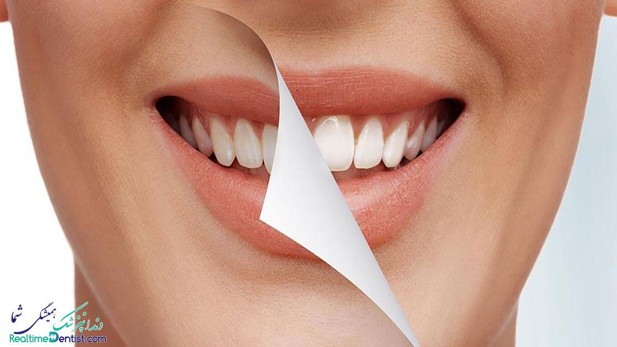جراحی افزایش تاج دندان در شیراز