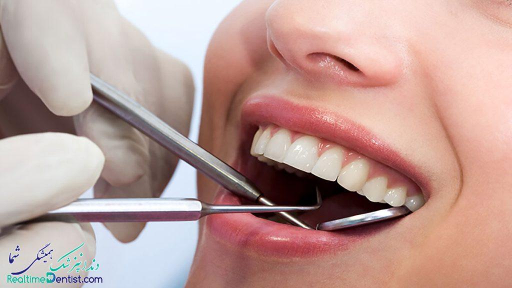 ترمیم دندان در شیرا