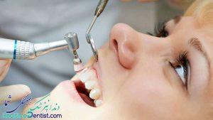جرم گیری دندان در شیراز + آدرس و شماره تلفن