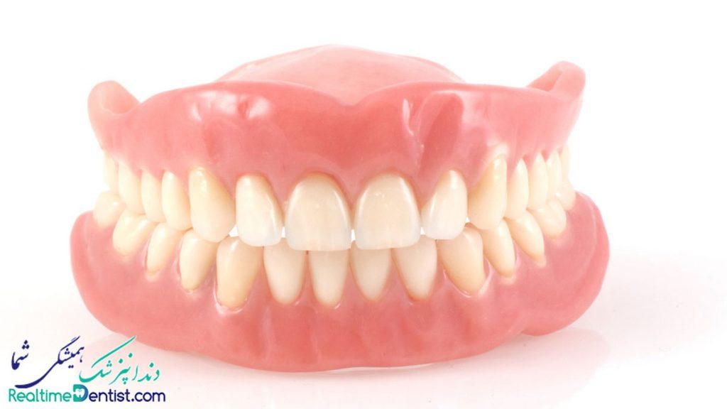 دندان مصنوعی در شیراز
