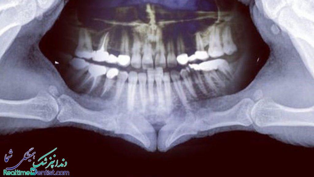 رادیولوژی دهان، فک و صورت در شیراز