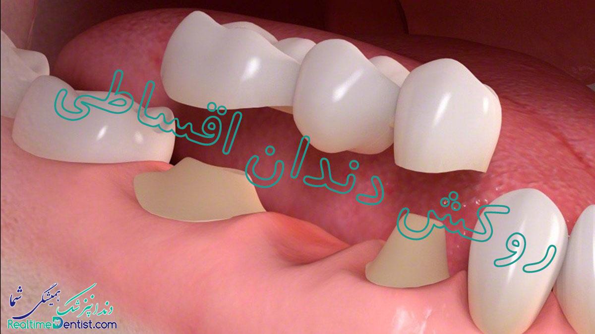 روکش دندان اقساطی در شیراز