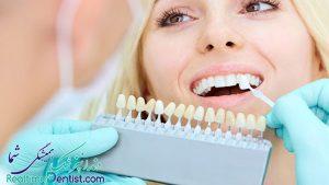 روکش دندان در شیراز + آدرس و تلفن بهترین دندانپزشک برای روکش دندان