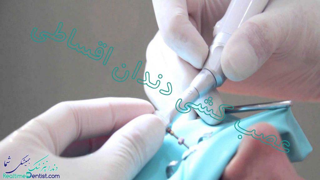 عصب کشی دندان اقساطی شیراز