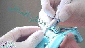 عصب کشی دندان اقساطی شیراز + آدرس و شماره تماس دندانپزشک متخصص عصب کشی