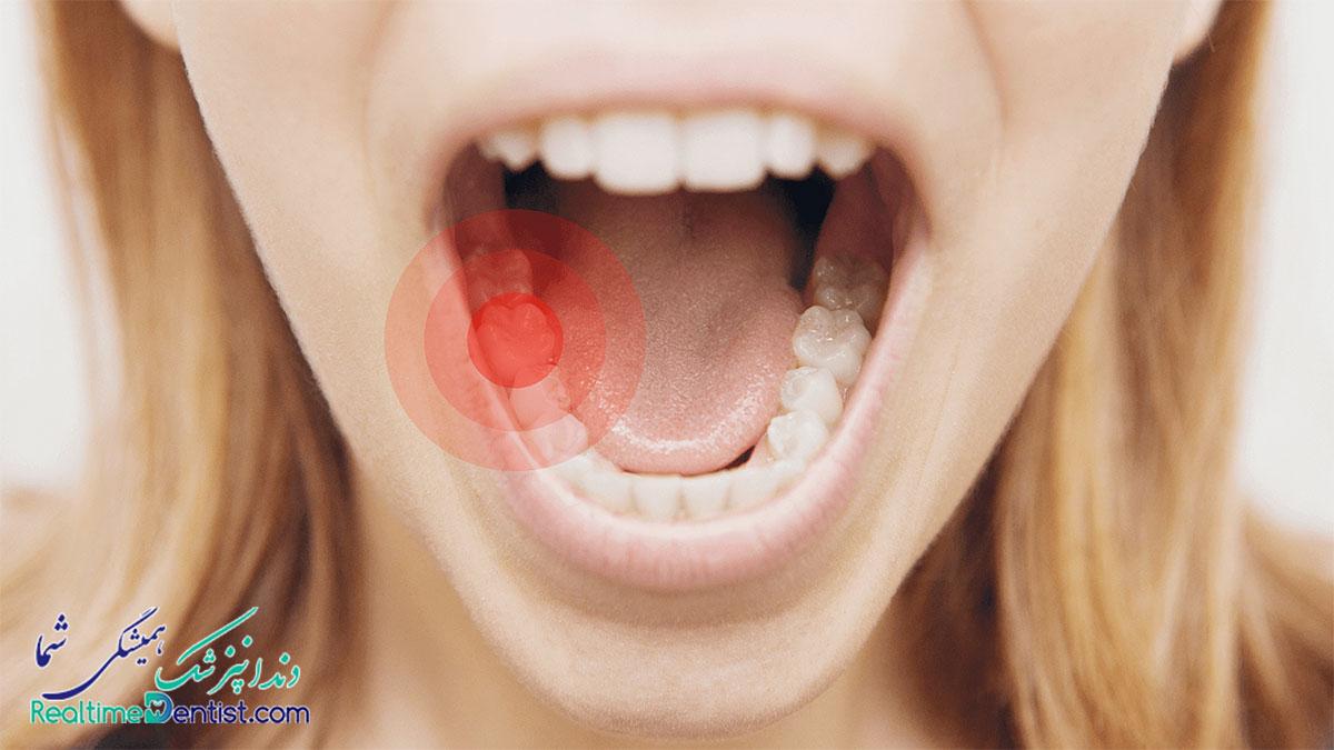 عصب کشی دندان در شیراز