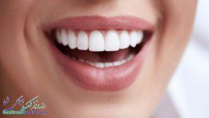 فیسینگ دندان در شیراز + بهترین دندانپزشک برای فیسینگ دندان در شیراز