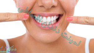 لمینت دندان اقساطی در شیراز + آدرس و شماره تماس