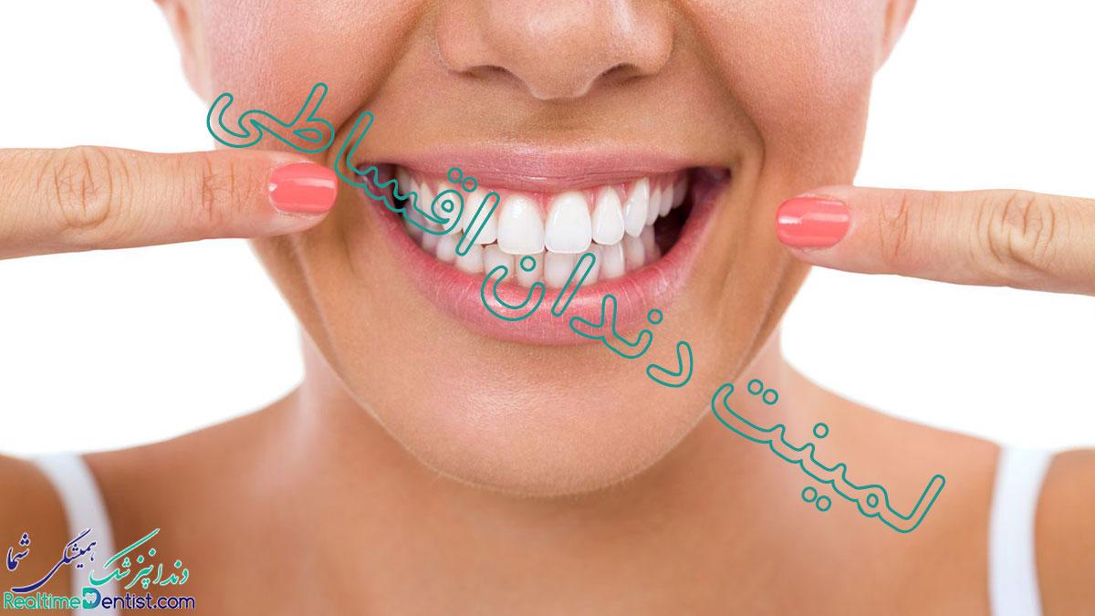 لمینت دندان اقساطی در شیراز