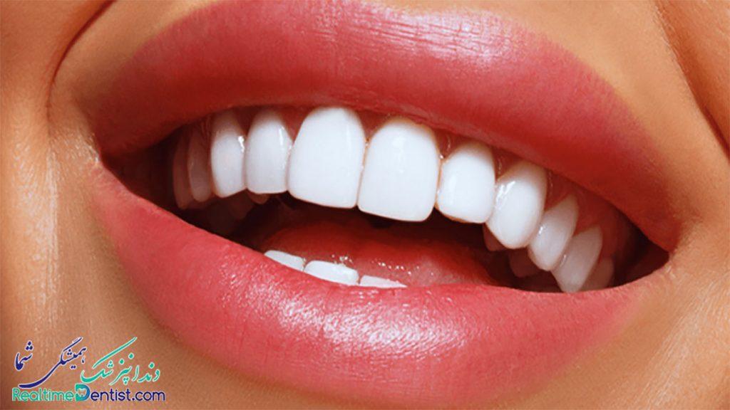 لمینت دندان شیراز