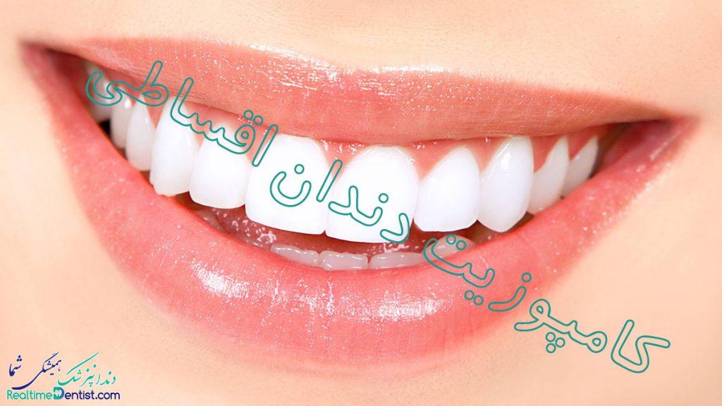 کامپوزیت دندان اقساطی در شیراز