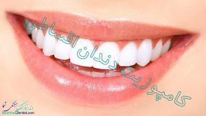 کامپوزیت دندان اقساطی شیراز + آدرس و شماره تماس دندانپزشک متخخص کامپوزیت