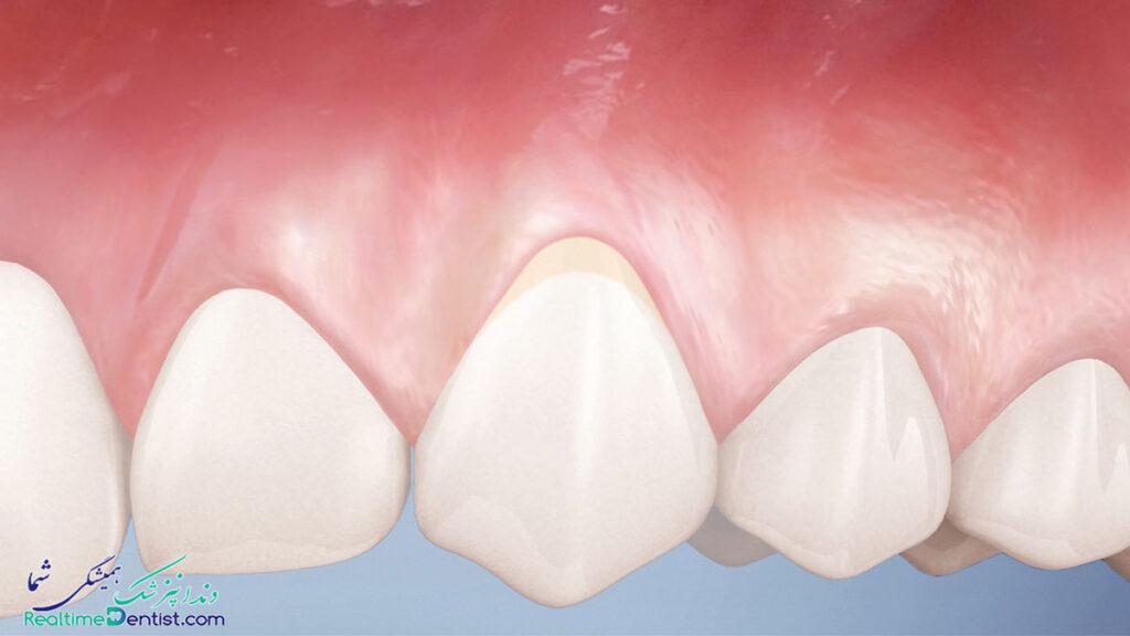 بهترین متخصص درمان ریشه دندان در شیراز