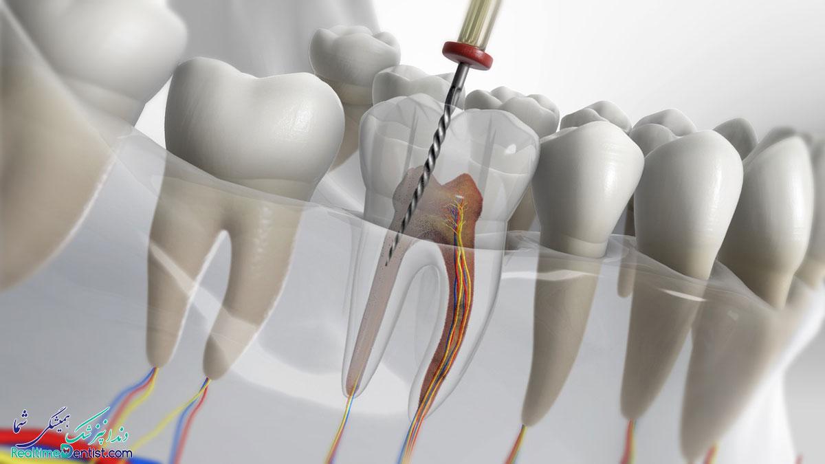 متخصص عصب کشی دندان در شیراز به همراه آدرس و شماره تماس