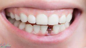ایمپلنت دندان چیست ؟ + مراحل ، فواید ، معایب و عوارض