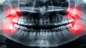 جراحی دندان عقل شیراز + آدرس و شماره تماس بهترین دندانپزشک برای جراحی و کشیدن دندان عقل در شیراز