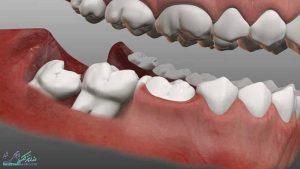 دندان عقل چیست ؟ آیا باید دندان عقل را کشید ؟