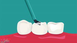 فیشور سیلانت در شیراز و آدرس و شماره تماس بهترین دندانپزشک فیشور سیلانت در شیراز