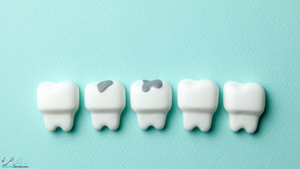 پر کردن دندان با مواد سفید یا مواد سیاه ؟