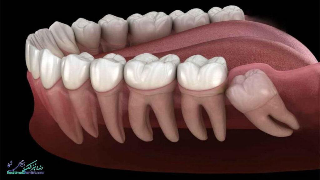 جراحی دندان عقل شیراز