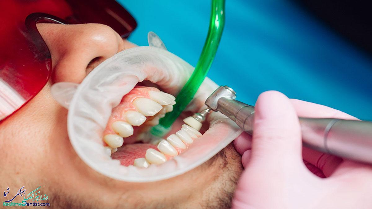 مضرات جرمگیری دندان