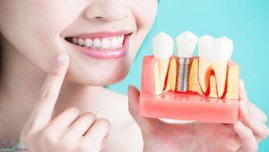 شرایط ایمپلنت دندان چیست ؟ بهترین و بدترین کاندیدا برای ایمپلنت دندان