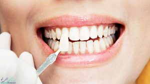 طراحی لبخند چیست و به چه روش های طراحی لبخند انجام می شود؟
