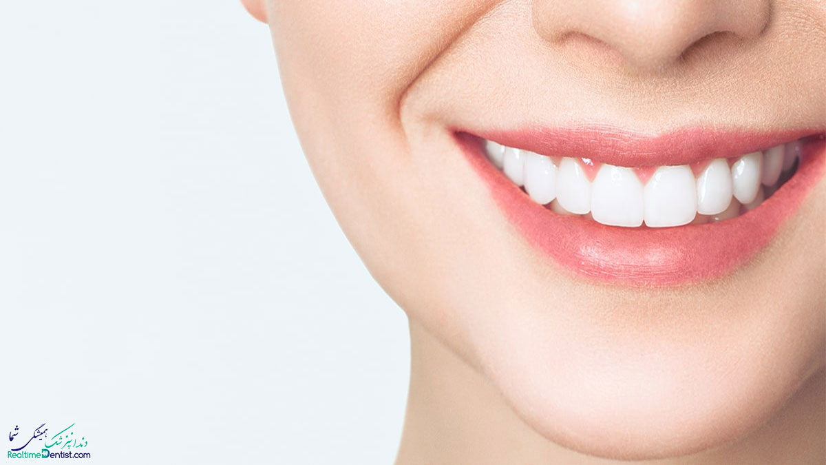 کامپوزیت و لمینت دندان