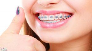 فواید ارتودنسی چیست ؟ با مزایای ارتودنسی دندان بیشتر آشنا شوید