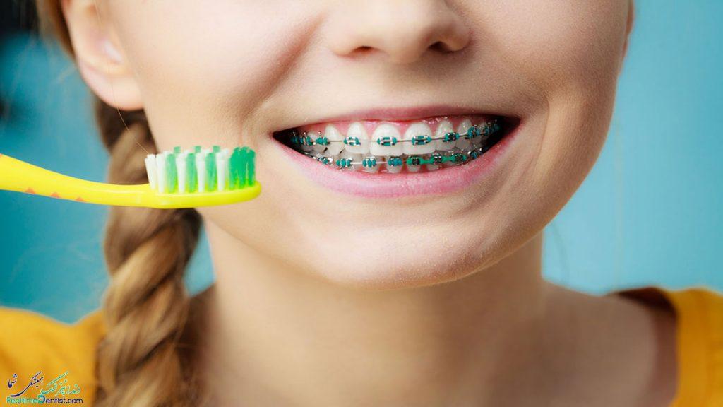 مراقبت از بریس دندان