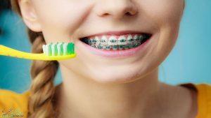 مراقبت از بریس دندان چگونه است؟ چگونه از بریس های خود نگهداری کنیم؟