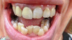 آیا می توان دندان های کج شده را صاف کرد؟