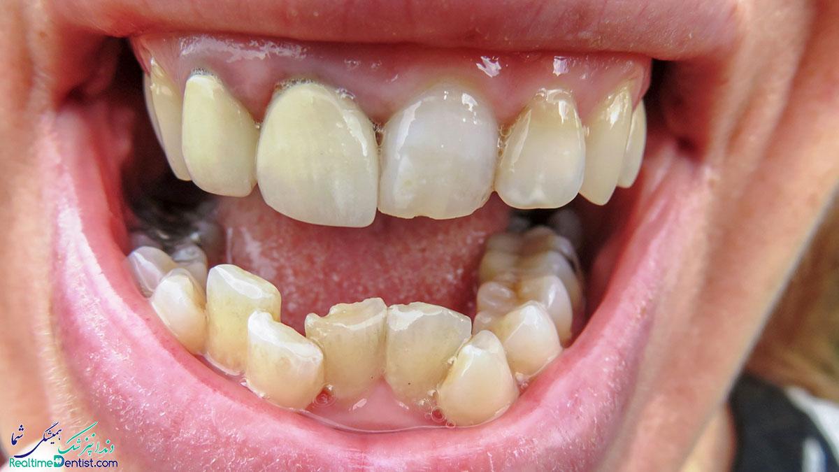 دندان های کج شده