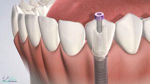 علت درد ایمپلنت دندان به همراه راه های درمان ایمپلنت دندان