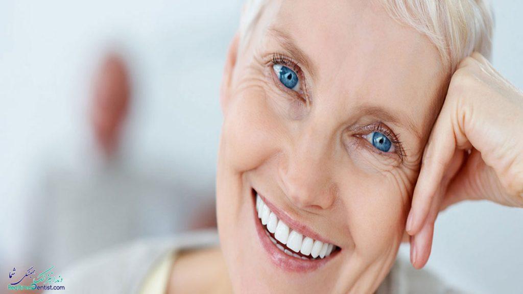زمان کاشت ایمپلنت دندان