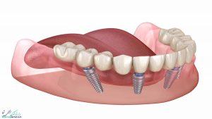 ایمپلنت دندان و دیابت : جراحی ایمپلنت برای دیابتی ها مضر است؟ یا خیر ؟