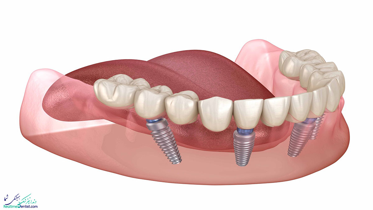 ایمپلنت دندان و دیابت