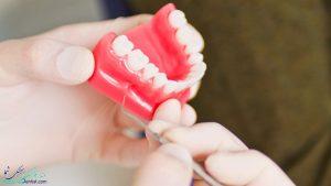 فرسایش مینای دندان به چه علت است ؟ و پیشگیری از فرسایش مینای دندان