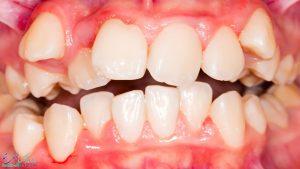 مال اکلوژن دندان ها چیست ؟ عوامل و علل اکلوژن