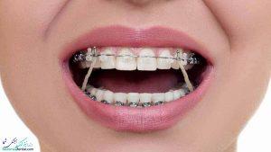 کشیدن دندان عقل در درمان ارتودنسی دندان امکان پذیر است؟