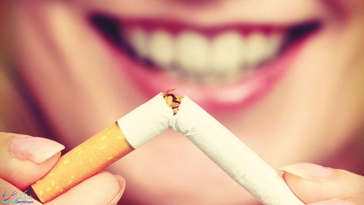 ارتودنسی و سیگار