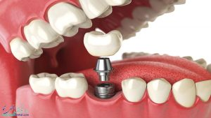 پس زدن ایمپلنت دندان و علایم شکست ایمپلنت به همراه علل و درمان آن